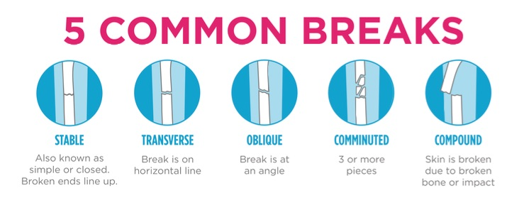 CastCoverz Common Bone Breaks